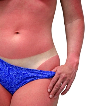 A woman's body with a bad case of sunburn. Isolated on white background and includes clipping path.